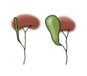 Figura 3. Vie biliari extra-epatiche completamente ostruite; la colecisti può essere più o meno coinvolta dal processo di fibrosi.