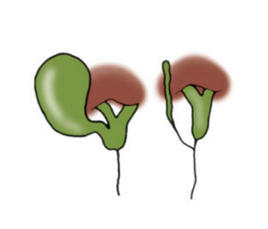 Figura 6. Atresia del coledoco con dotti epatici pervi.