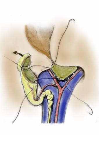 Figura 9. Intervento di Colecisto-portoanastomosi; in questo caso è la colecisti e non l'intestino che viene raccordata al fegato dove vi siano dotti pervi.
