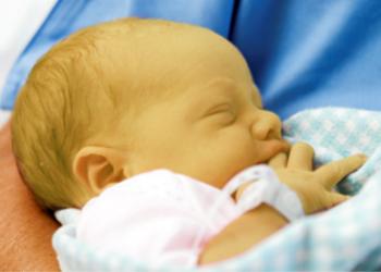 neonato itterico rid